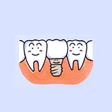 健康な歯を削ることなく、インプラントを入れます。