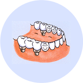 歯の無い部分に適切な本数のインプラントを入れ、固定式の人工歯を取り付けます。
